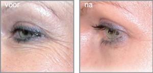 na enkele bindweefselbehandelingen ziet de huid er stralender uit.